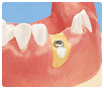 Potsdam Oralchirurgie Knochenaufbau