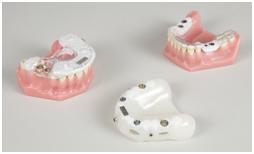 Implantologie in der Potsdam Oralchirurgie