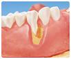 Oralchirurgie Knochenaufbau erklärt