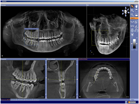 Röntgenbild einer DVT
