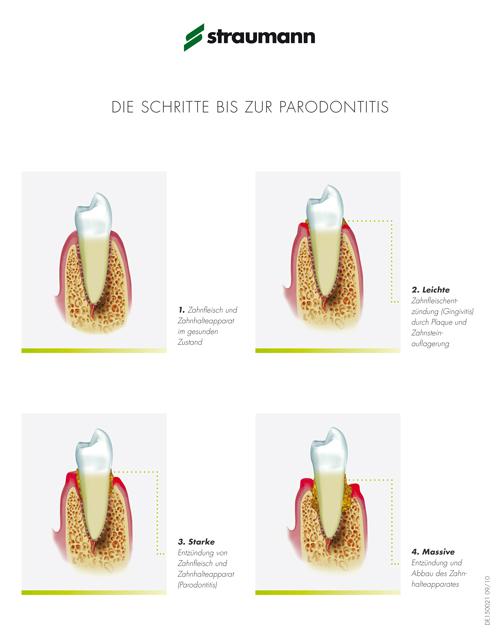 Parodontalchirurgie - Potsdam Oralchirurgie