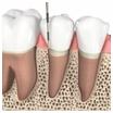 Knochenaufbau an Zähnen