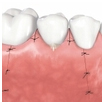 Parodontalchirurgie Potsdam
